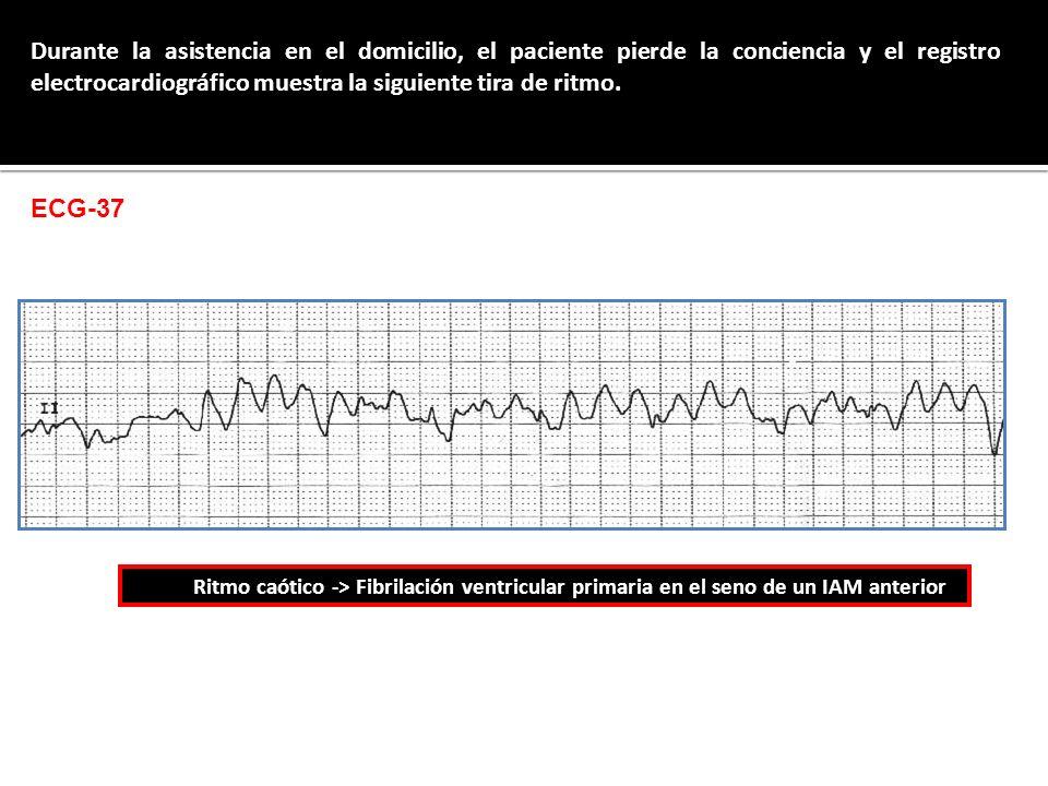 Durante la asistencia en el domicilio, el paciente pierde la conciencia y el registro electrocardiográfico muestra la siguiente tira de ritmo.