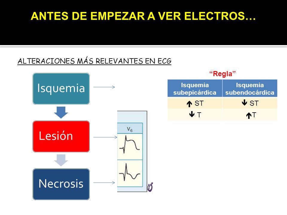 ANTES DE EMPEZAR A VER ELECTROS…