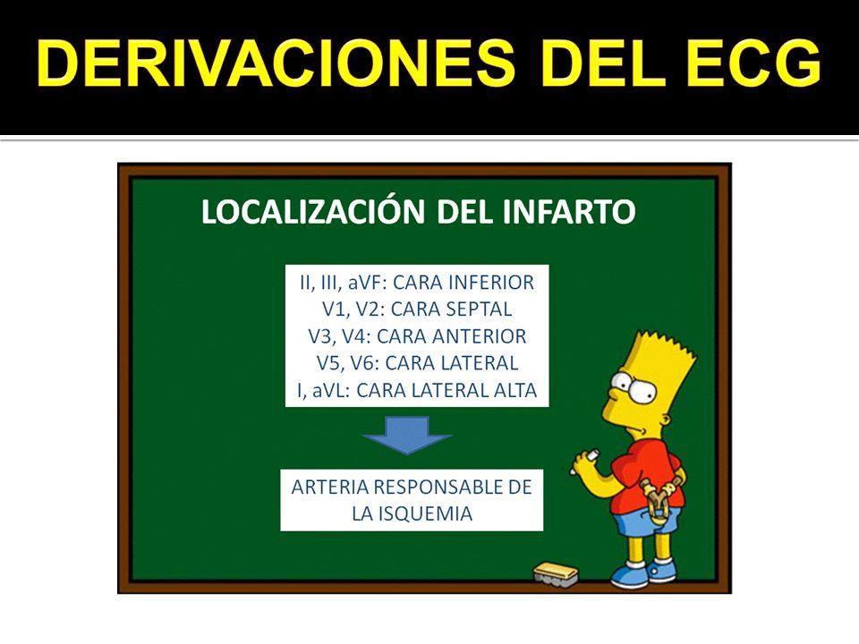 DERIVACIONES DEL ECG 4