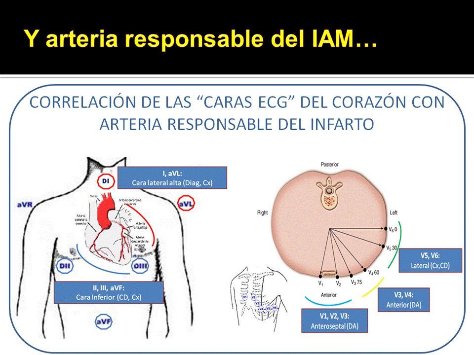 Y arteria responsable del IAM…