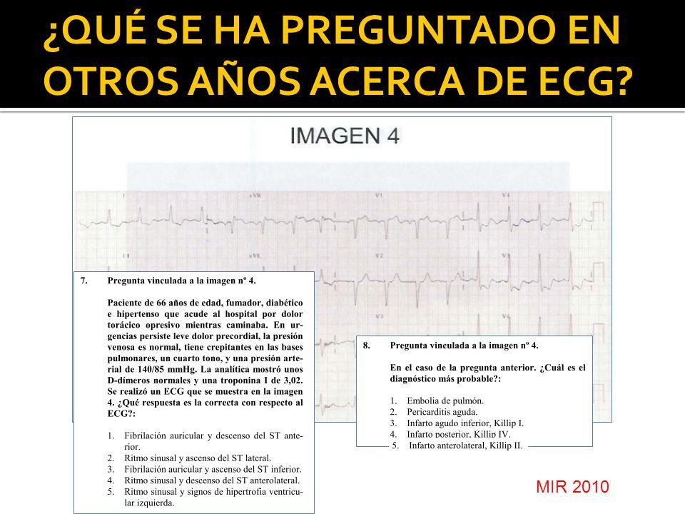 ¿QUÉ SE HA PREGUNTADO EN OTROS AÑOS ACERCA DE ECG