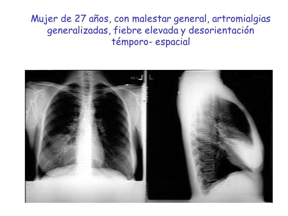 Mujer de 27 años, con malestar general, artromialgias generalizadas, fiebre elevada y desorientación témporo- espacial