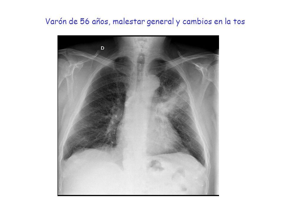 Varón de 56 años, malestar general y cambios en la tos