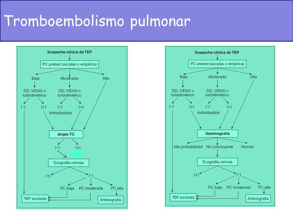 Tromboembolismo pulmonar