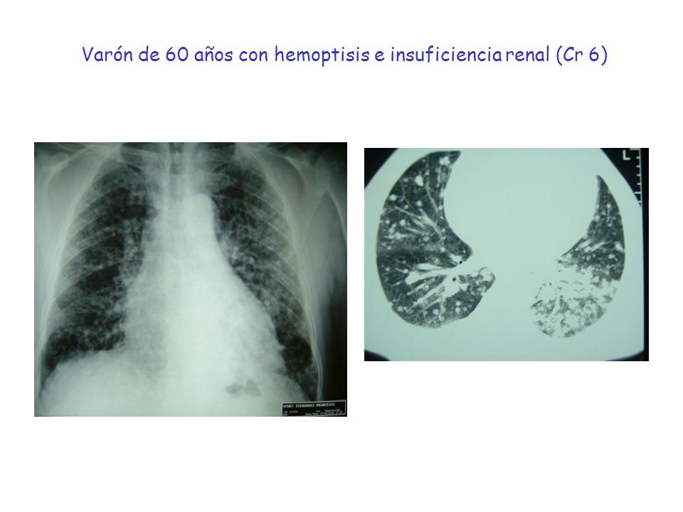 Varón de 60 años con hemoptisis e insuficiencia renal (Cr 6)