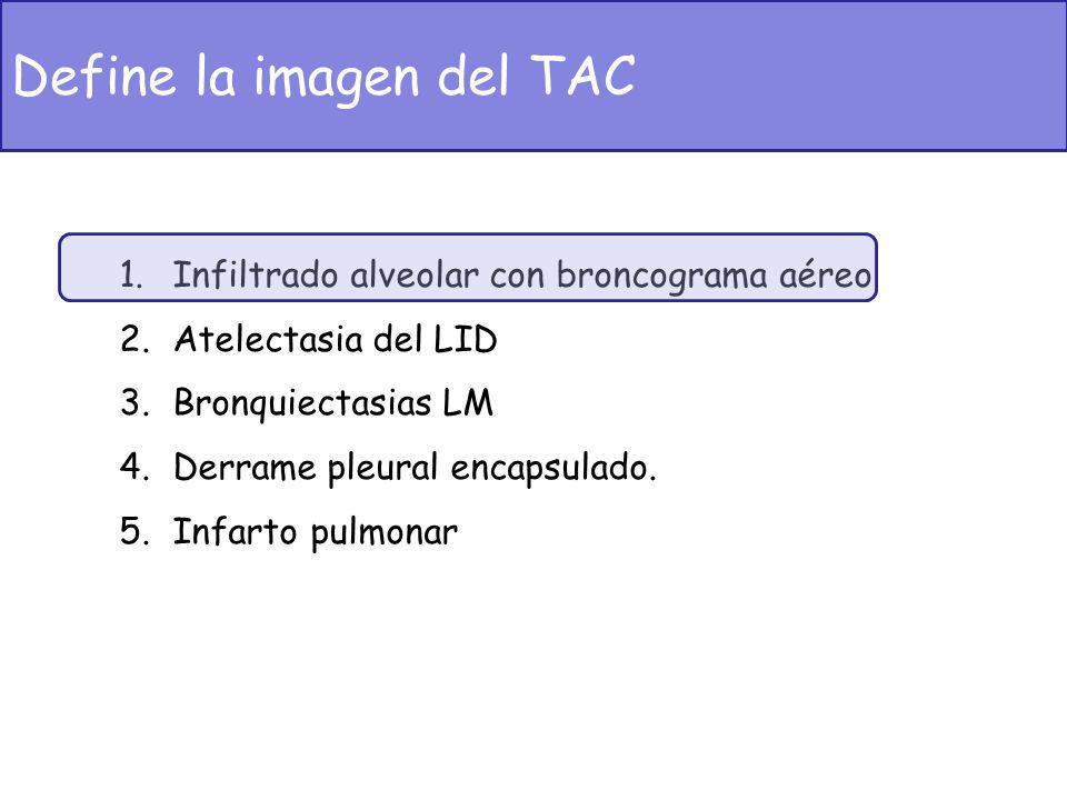 Define la imagen del TAC