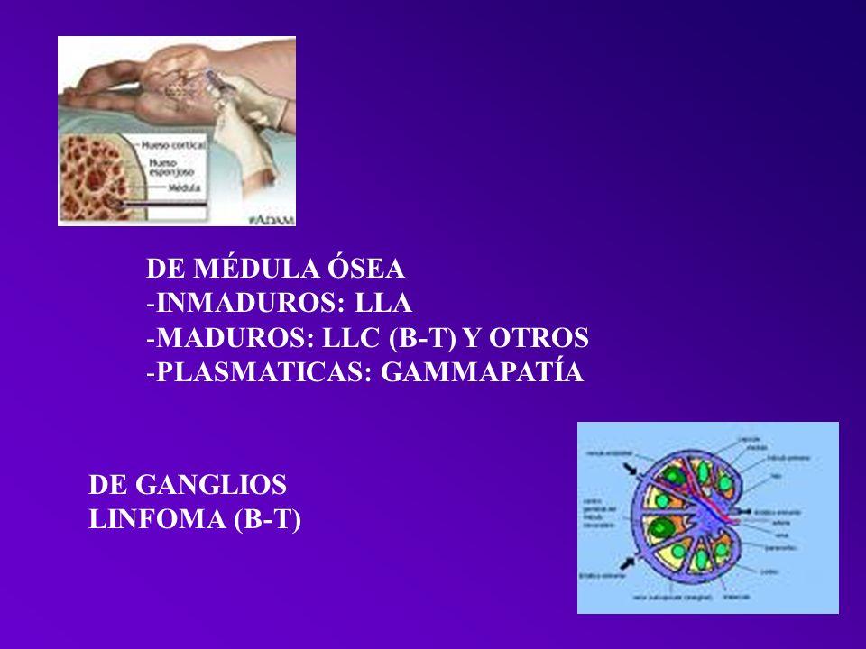 DE MÉDULA ÓSEA INMADUROS: LLA. MADUROS: LLC (B-T) Y OTROS. PLASMATICAS: GAMMAPATÍA. DE GANGLIOS.