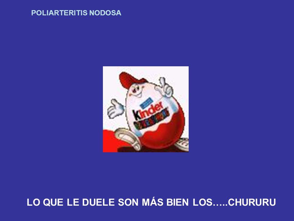 LO QUE LE DUELE SON MÁS BIEN LOS…..CHURURU
