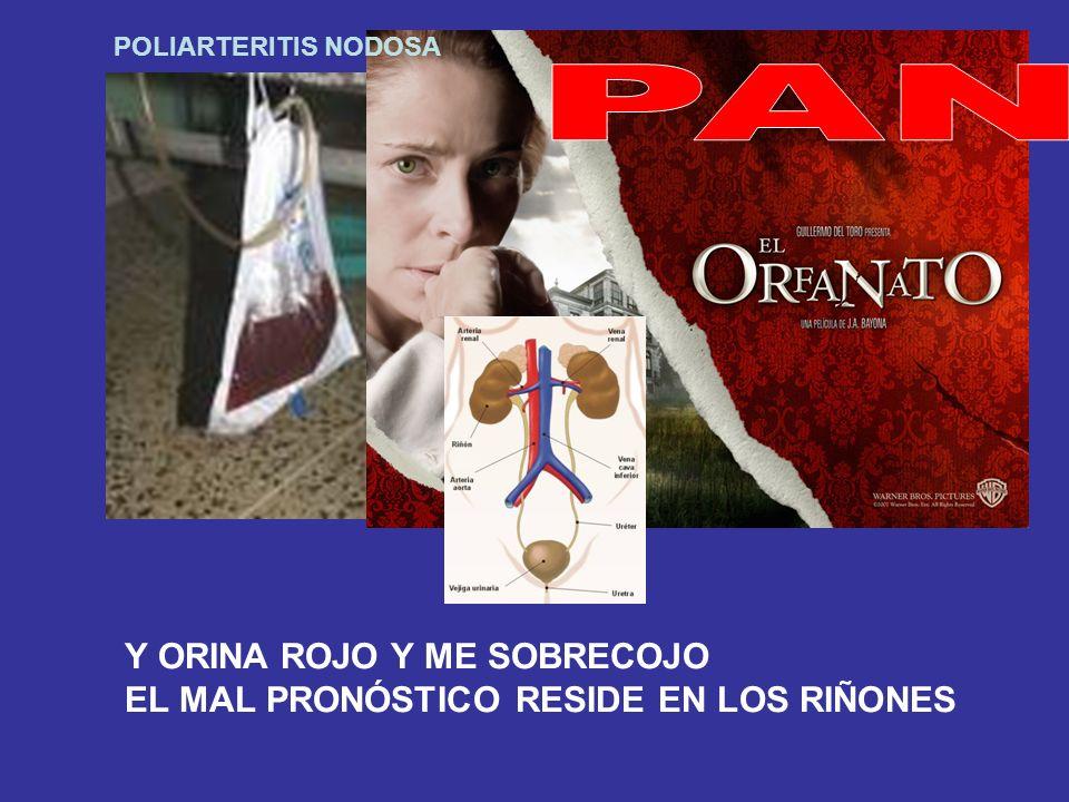 PAN Y ORINA ROJO Y ME SOBRECOJO