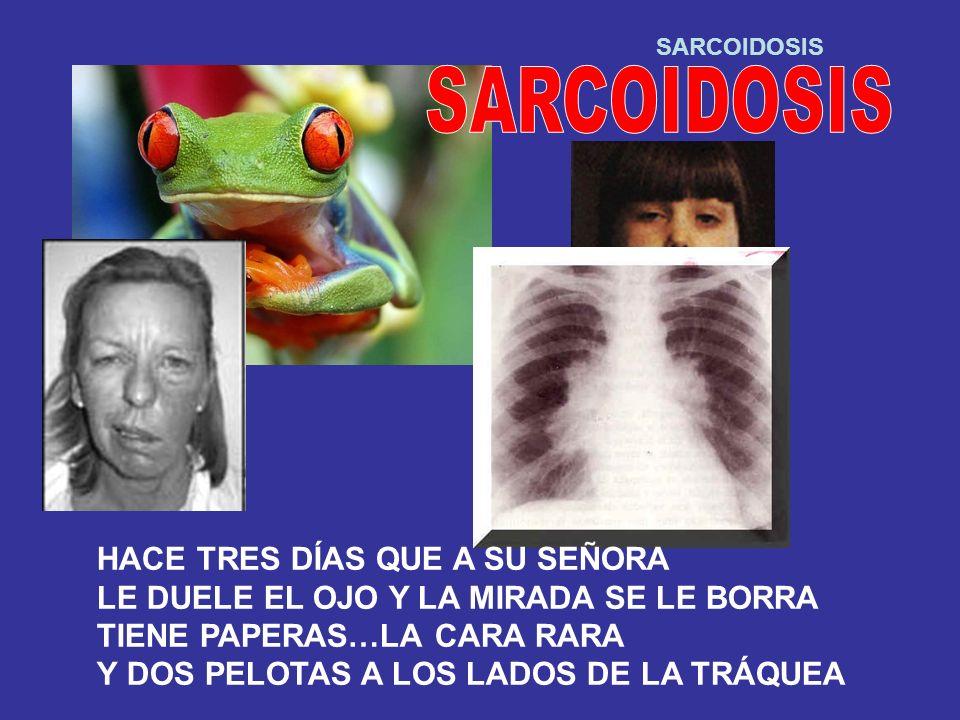 SARCOIDOSIS HACE TRES DÍAS QUE A SU SEÑORA