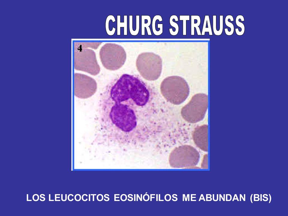 CHURG STRAUSS LOS LEUCOCITOS EOSINÓFILOS ME ABUNDAN (BIS)