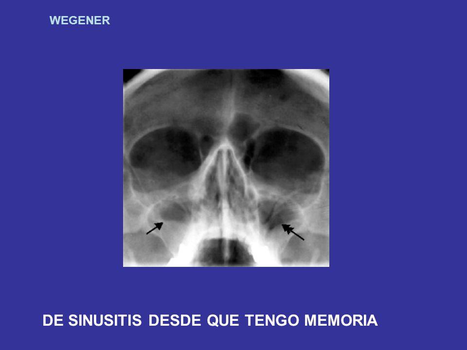 DE SINUSITIS DESDE QUE TENGO MEMORIA