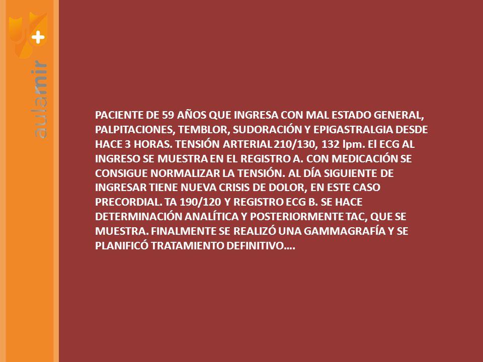 PACIENTE DE 59 AÑOS QUE INGRESA CON MAL ESTADO GENERAL, PALPITACIONES, TEMBLOR, SUDORACIÓN Y EPIGASTRALGIA DESDE HACE 3 HORAS.