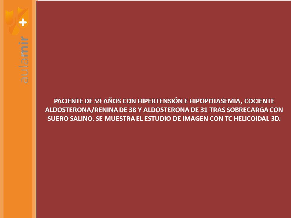 PACIENTE DE 59 AÑOS CON HIPERTENSIÓN E HIPOPOTASEMIA, COCIENTE ALDOSTERONA/RENINA DE 38 Y ALDOSTERONA DE 31 TRAS SOBRECARGA CON SUERO SALINO.
