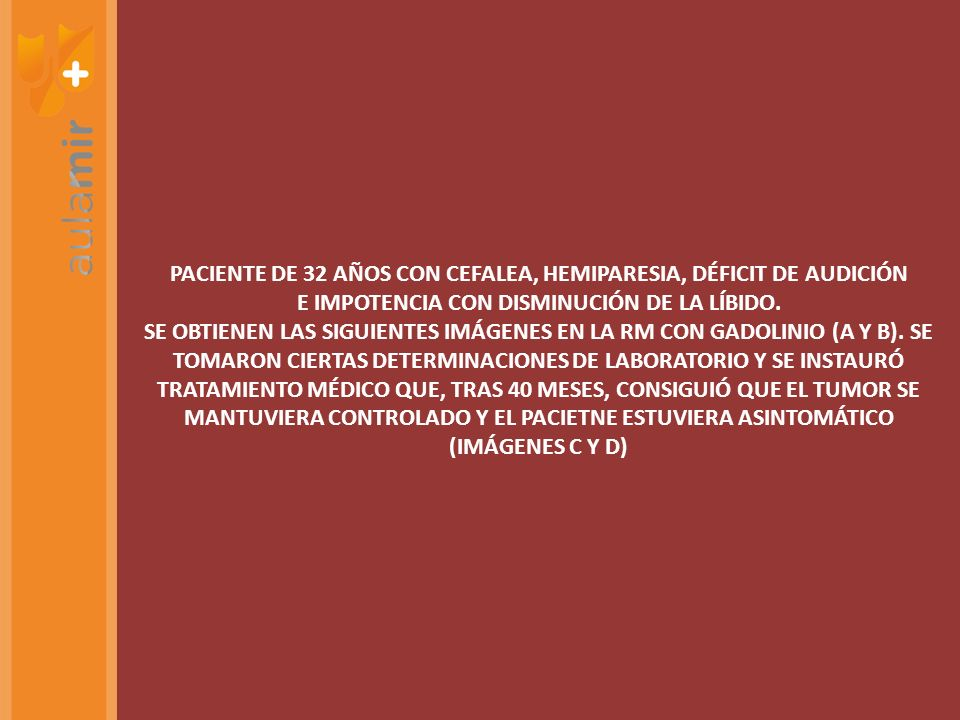 PACIENTE DE 32 AÑOS CON CEFALEA, HEMIPARESIA, DÉFICIT DE AUDICIÓN