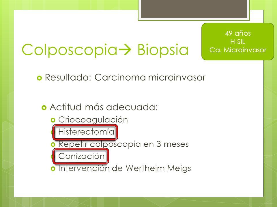 Colposcopia Biopsia Resultado: Carcinoma microinvasor