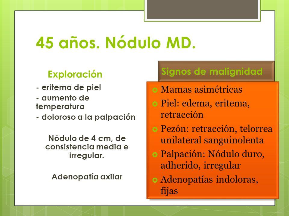 45 años. Nódulo MD. Signos de malignidad Exploración Mamas asimétricas