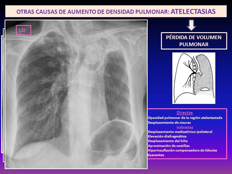 OTRAS CAUSAS DE AUMENTO DE DENSIDAD PULMONAR: ATELECTASIAS