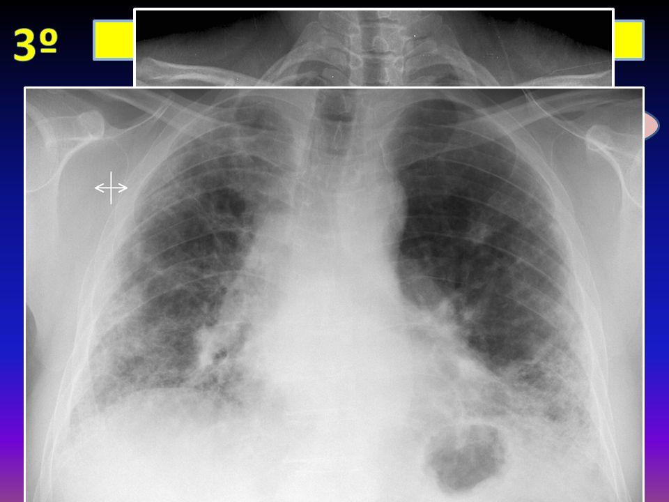 3º Lesiones intrapulmonares: intersticiales
