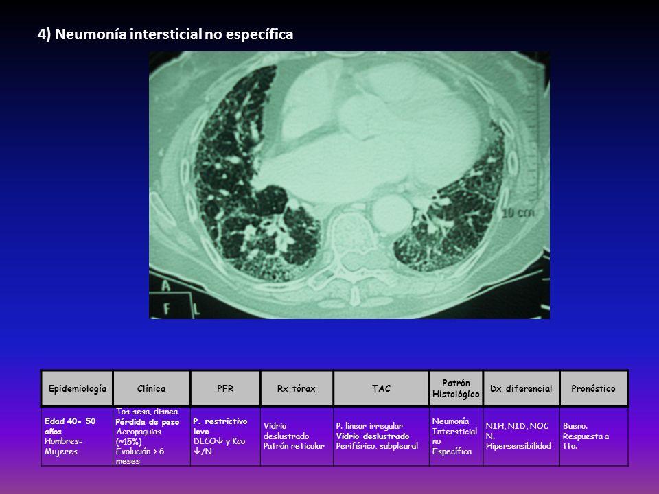 4) Neumonía intersticial no específica