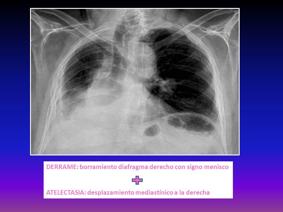 DERRAME: borramiento diafragma derecho con signo menisco