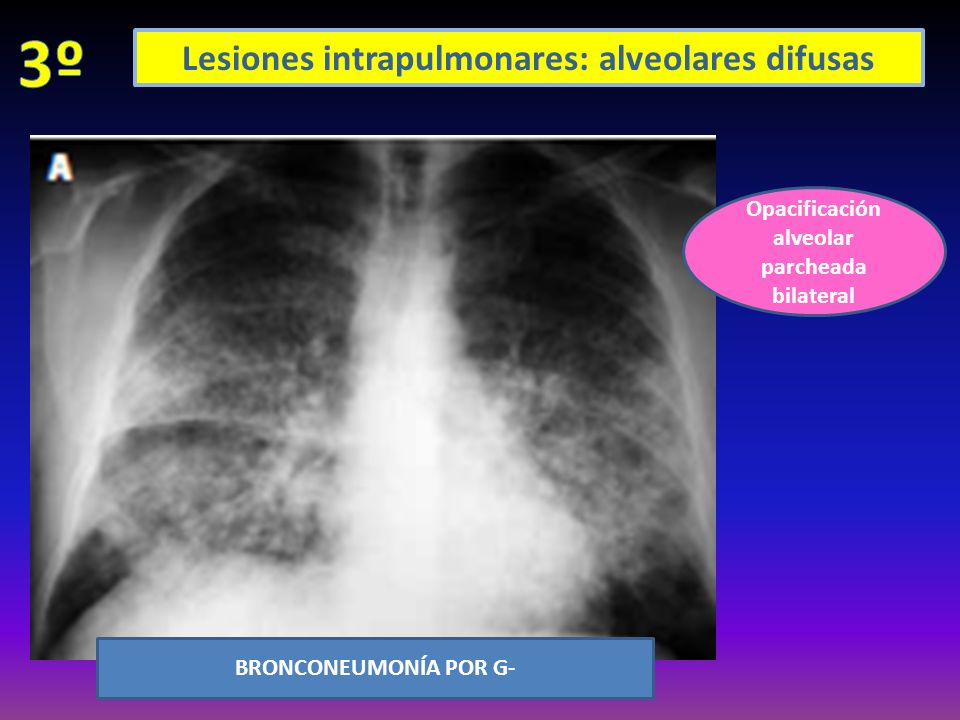 3º Lesiones intrapulmonares: alveolares difusas