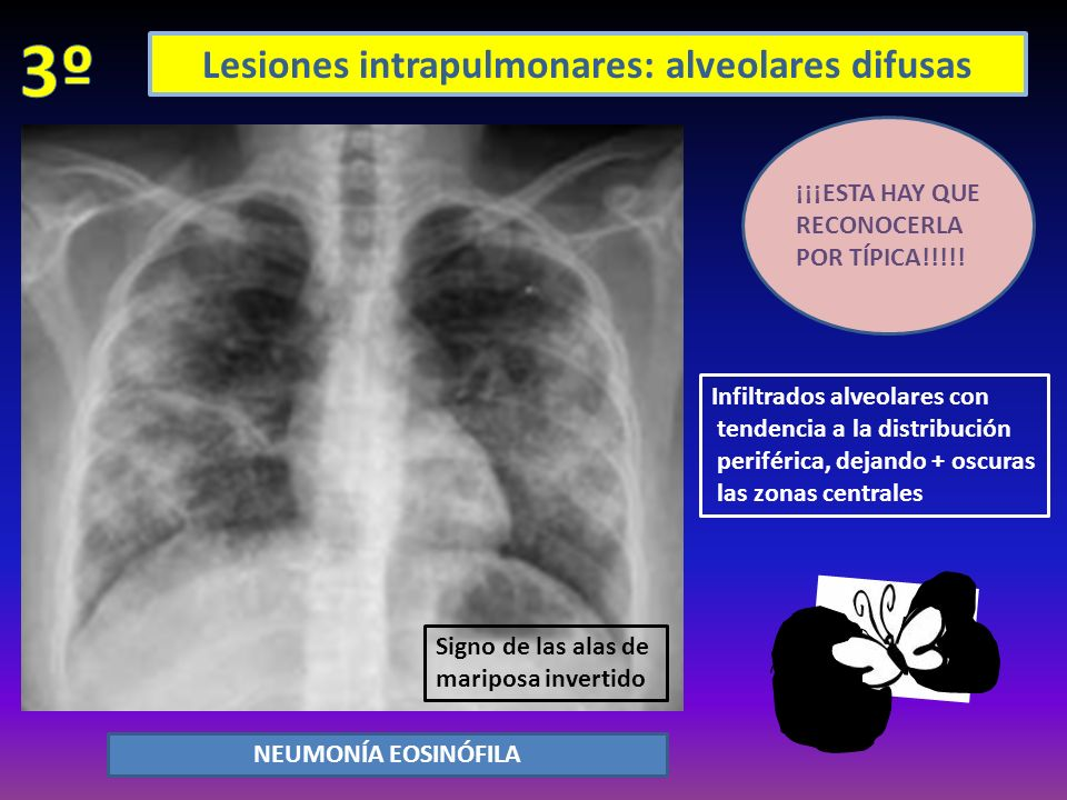 Lesiones intrapulmonares: alveolares difusas