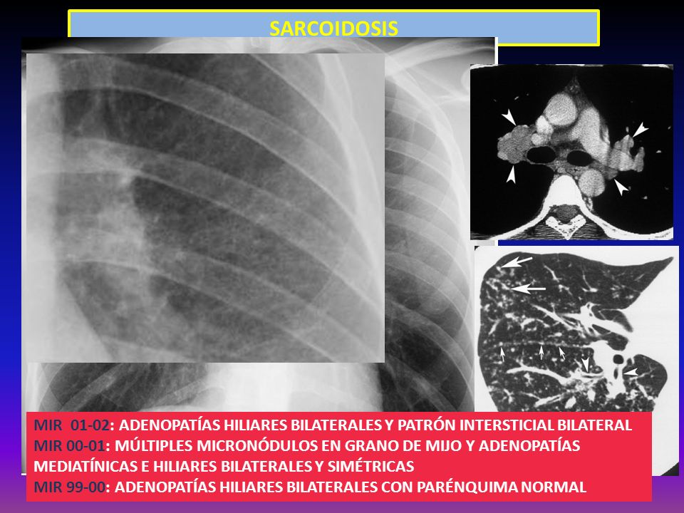 SARCOIDOSISFigure 5. Pulmonary sarcoidosis in a 24-year-old. man. High-resolution chest CT scan demonstrates.