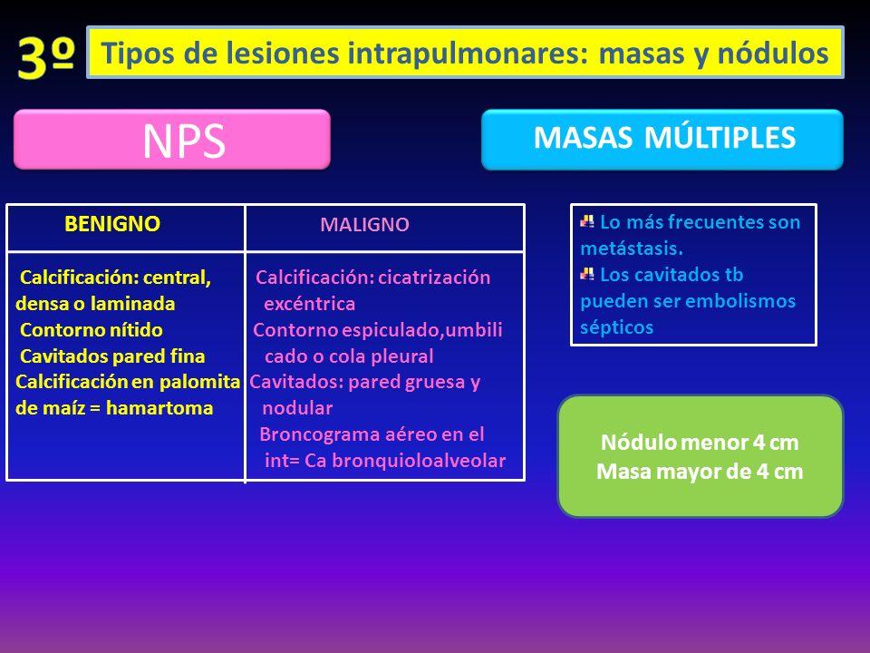 Tipos de lesiones intrapulmonares: masas y nódulos