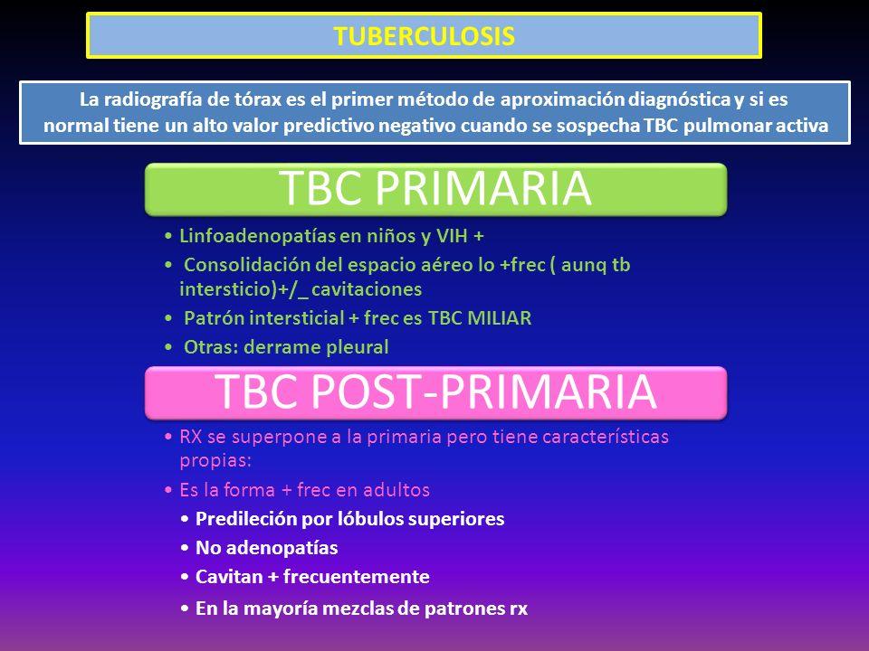 TBC PRIMARIA TBC POST-PRIMARIA TUBERCULOSIS