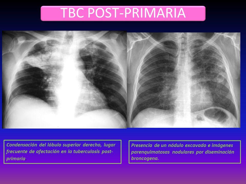 TBC POST-PRIMARIA Condensación del lóbulo superior derecho, lugar frecuente de afectación en la tuberculosis post-primaria.