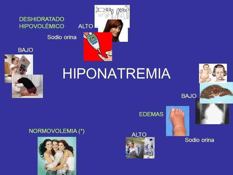 HIPONATREMIA DESHIDRATADO HIPOVOLÉMICO ALTO Sodio orina BAJO BAJO