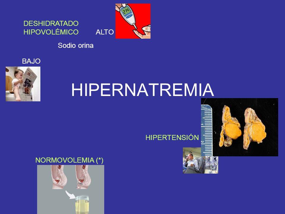 HIPERNATREMIA DESHIDRATADO HIPOVOLÉMICO ALTO Sodio orina BAJO