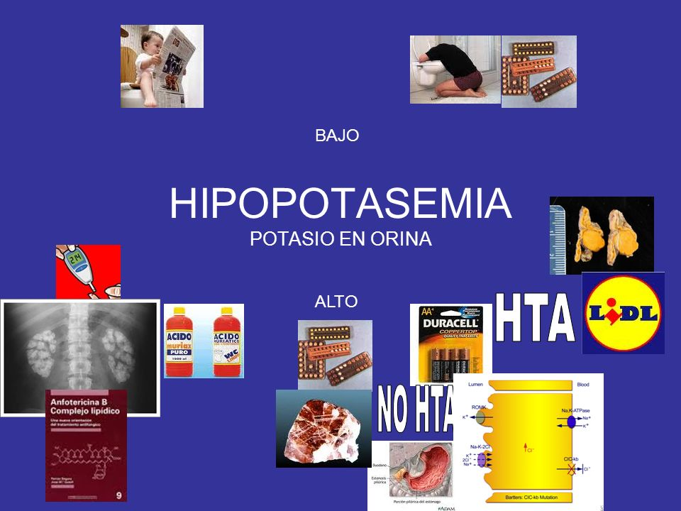 HIPOPOTASEMIA POTASIO EN ORINA