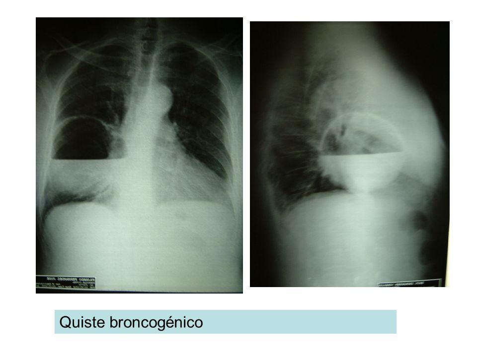 Quiste broncogénico