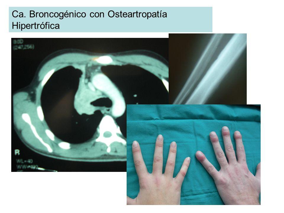 Ca. Broncogénico con Osteartropatía Hipertrófica