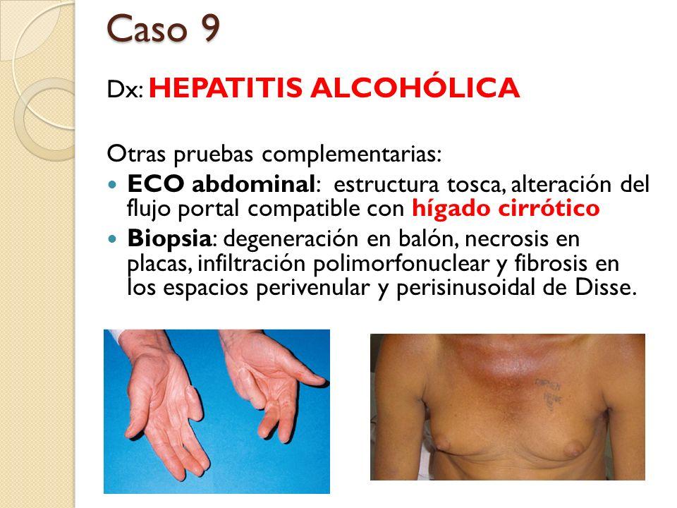 Caso 9 Dx: HEPATITIS ALCOHÓLICA Otras pruebas complementarias: