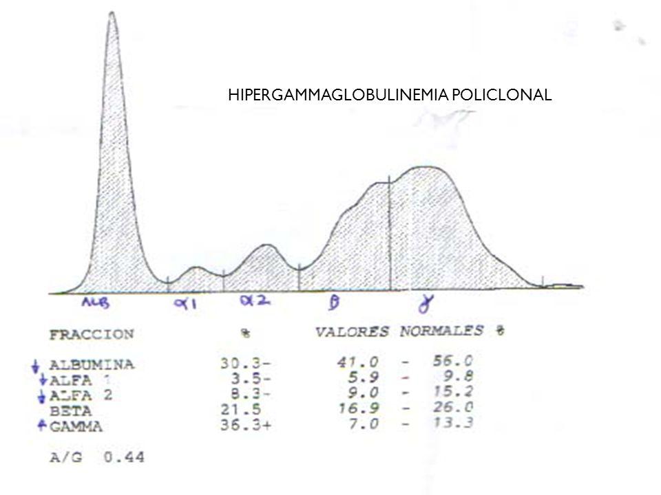 HIPERGAMMAGLOBULINEMIA POLICLONAL