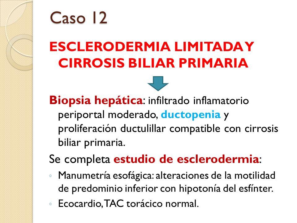 Caso 12 ESCLERODERMIA LIMITADA Y CIRROSIS BILIAR PRIMARIA