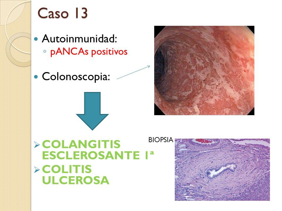 Caso 13 Autoinmunidad: Colonoscopia: COLANGITIS ESCLEROSANTE 1ª