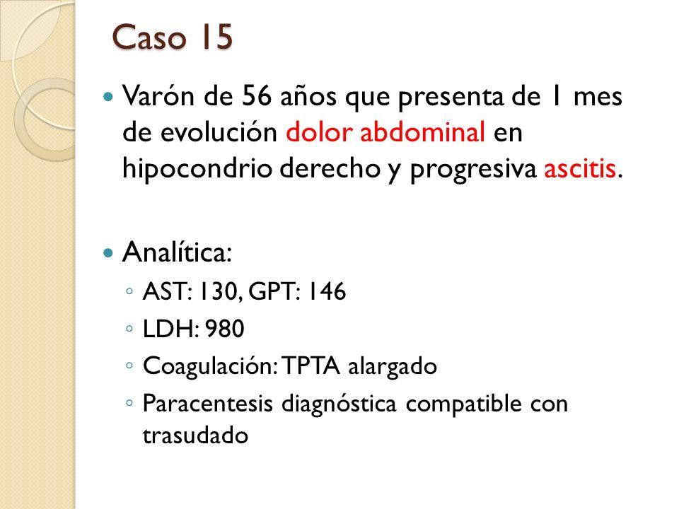 Caso 15 Varón de 56 años que presenta de 1 mes de evolución dolor abdominal en hipocondrio derecho y progresiva ascitis.