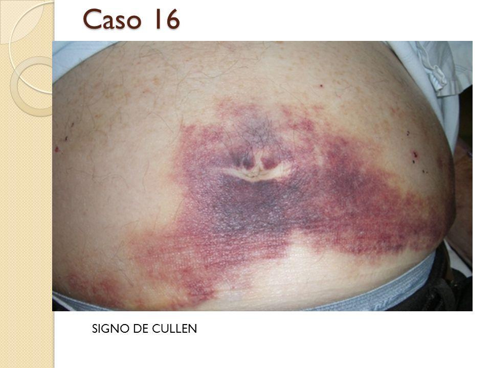 Caso 16 SIGNO DE CULLEN