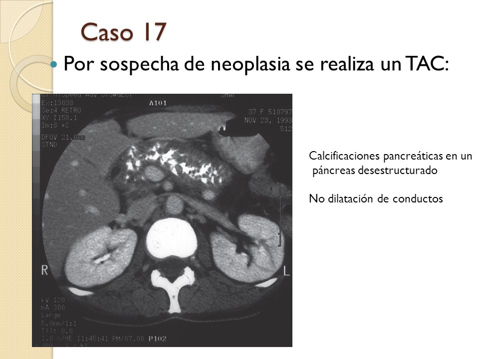 Caso 17 Por sospecha de neoplasia se realiza un TAC: