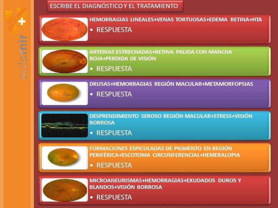 RESPUESTA ESCRIBE EL DIAGNÓSTICO Y EL TRATAMIENTO