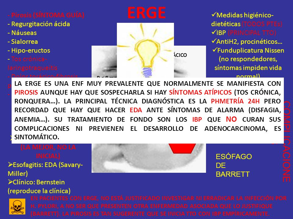 ERGE COMPLICACIONES Pirosis (SÍNTOMA GUÍA) Regurgitación ácida Náuseas