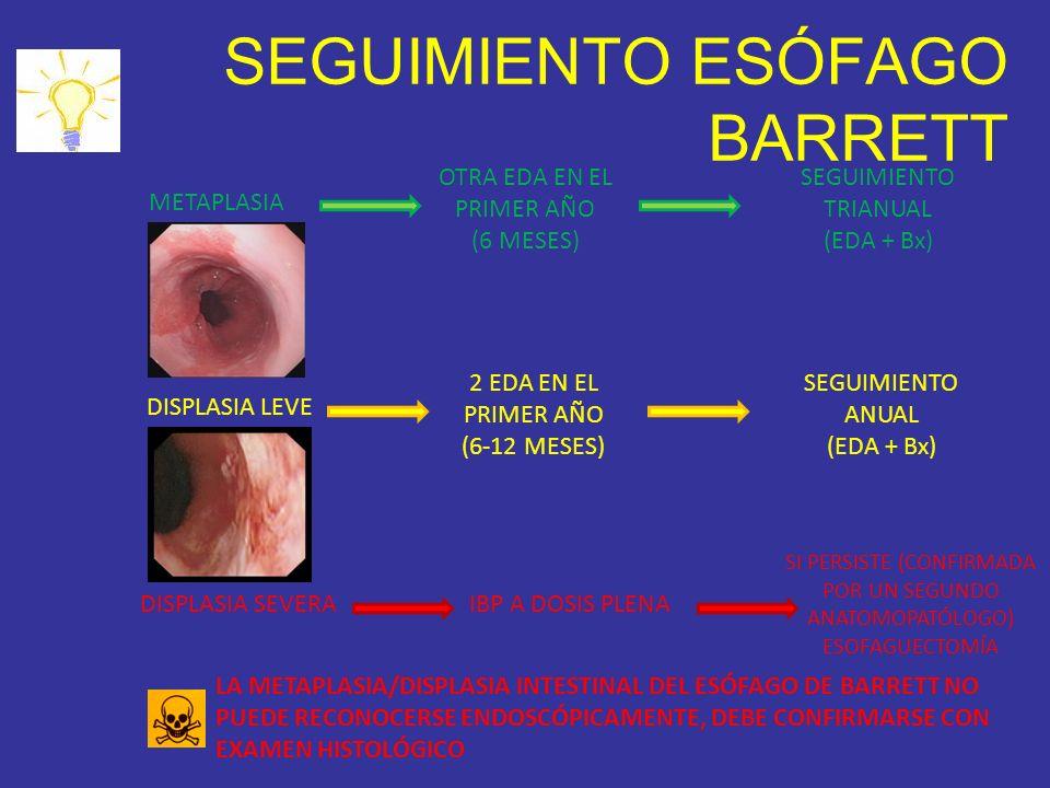 SEGUIMIENTO ESÓFAGO BARRETT