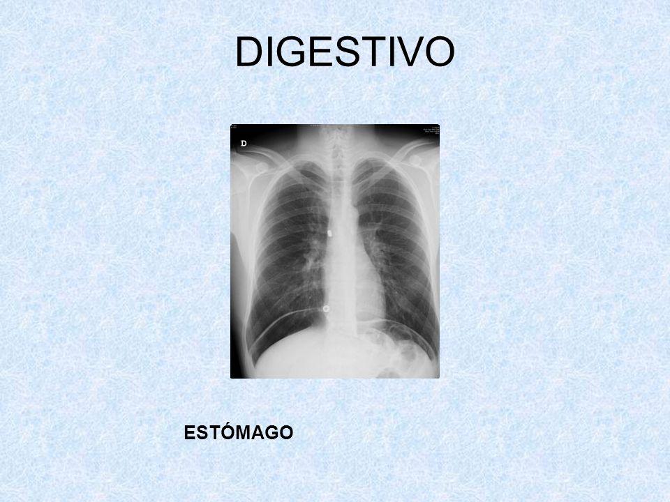 DIGESTIVO ESTÓMAGO