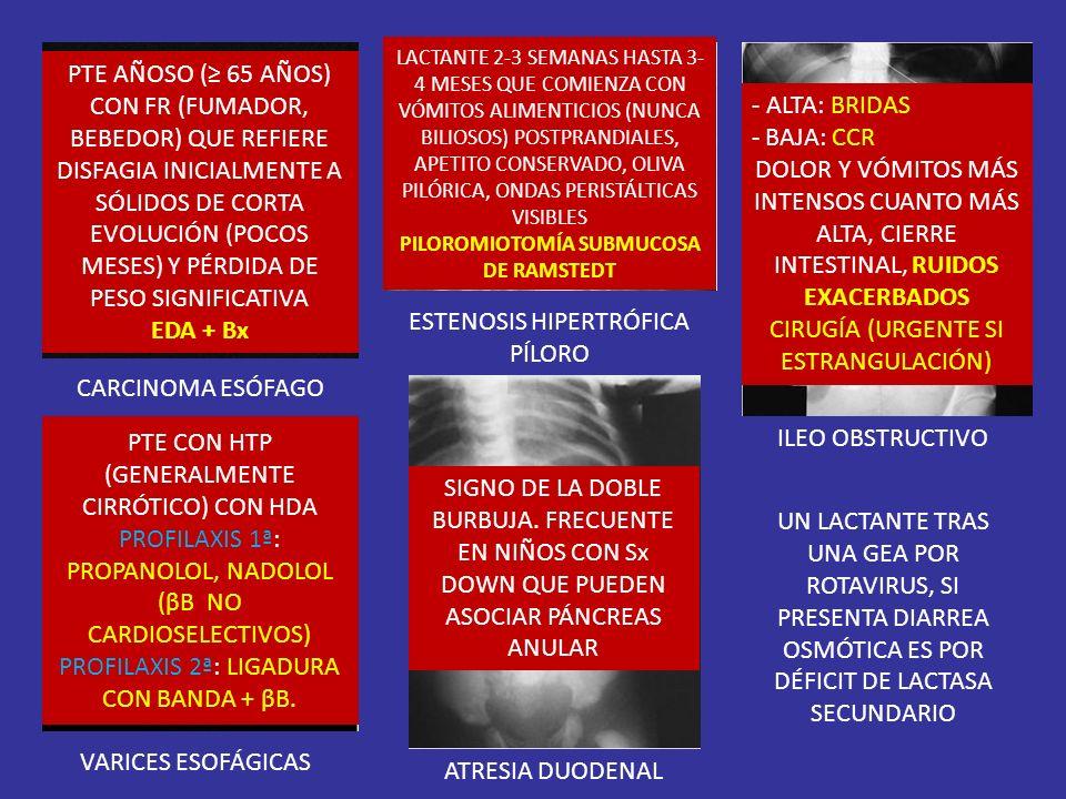 PILOROMIOTOMÍA SUBMUCOSA DE RAMSTEDT