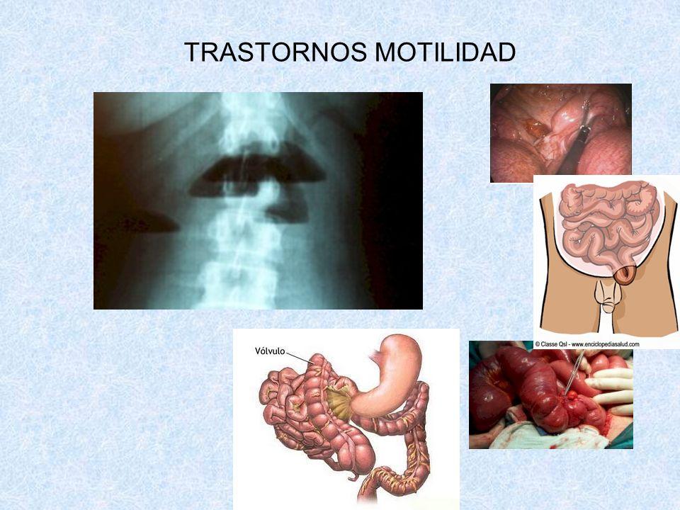 TRASTORNOS MOTILIDAD