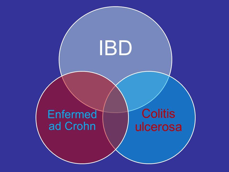 IBD Colitis ulcerosa Enfermedad Crohn